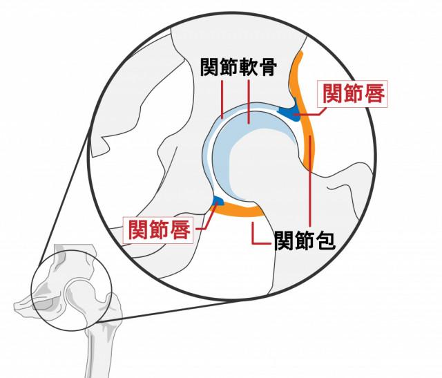 変形性股関節症について