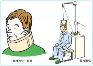 頚椎カラーと頚椎牽引